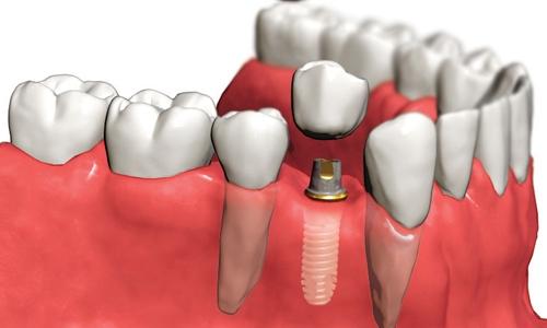 implantaciya_zubov.jpg