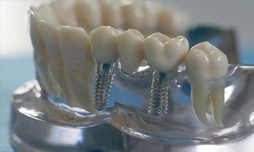 implanty_zubov_1.jpg
