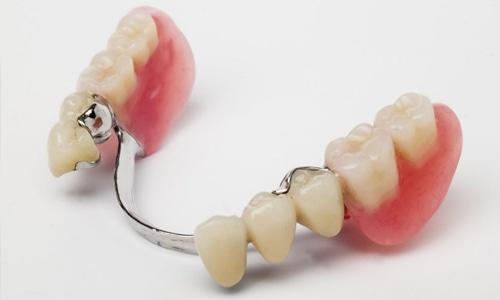 protezirovanie_zubov_1.jpg